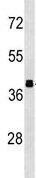 Western blot - Anti-Aldolase B antibody (ab138760)