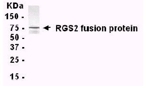 Western blot - Anti-RGS2 antibody (ab14069)