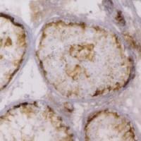 Immunohistochemistry (Formalin/PFA-fixed paraffin-embedded sections) - Anti-Inhibin alpha antibody [R1] (ab14087)