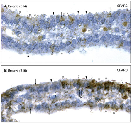 Immunohistochemistry (Formalin/PFA-fixed paraffin-embedded sections) - Anti-SPARC antibody (ab14174)