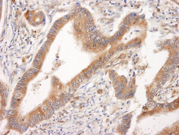 Immunohistochemistry (Formalin/PFA-fixed paraffin-embedded sections) - Anti-Bid antibody (ab14436)