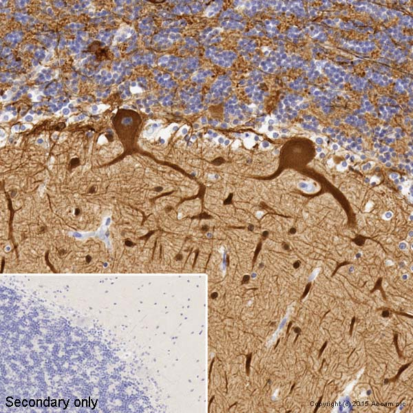 Immunocytochemistry/ Immunofluorescence - Anti-beta III Tubulin antibody [TUJ-1] (ab14545)
