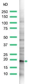Western blot - Anti-Claudin 1 antibody, prediluted (ab15099)