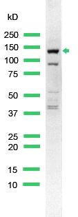 Western blot - Anti-ErbB 4 antibody, prediluted (ab15140)
