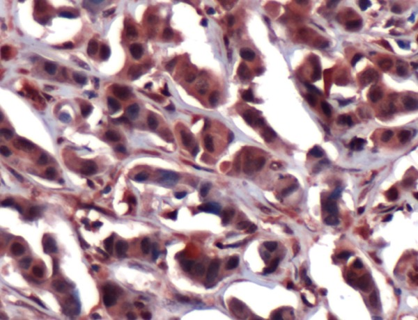 Immunohistochemistry (Formalin/PFA-fixed paraffin-embedded sections) - Anti-ERK2 antibody, prediluted (ab15283)