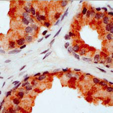 Immunohistochemistry (Formalin/PFA-fixed paraffin-embedded sections) - Anti-Fas Ligand antibody, prediluted (ab15286)