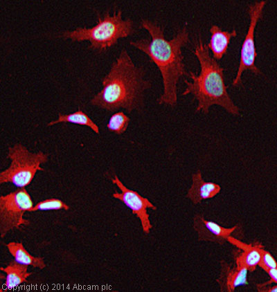 Immunocytochemistry/ Immunofluorescence - Anti-Parkin antibody (ab15494)