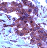 Immunohistochemistry (Formalin/PFA-fixed paraffin-embedded sections) - TIMP2 antibody, prediluted (ab15560)