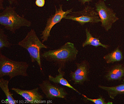 Immunocytochemistry/ Immunofluorescence - Anti-Peroxiredoxin 2 antibody (ab15572)