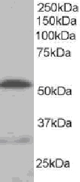 Western blot - Anti-Integrin linked ILK antibody (ab15838)