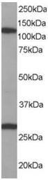 Western blot - Anti-Importin 7 antibody (ab15840)