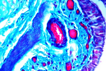 Staining using ab150686 - Trichrome Stain Kit (Modified Masson's)