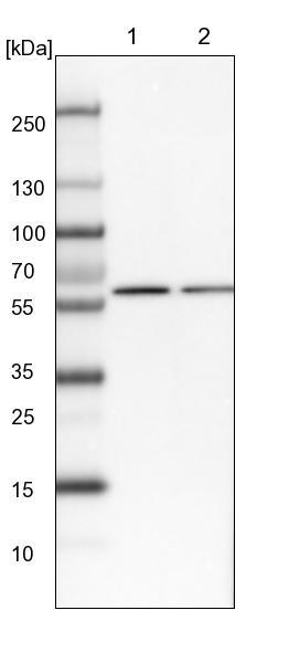 Western blot - Anti-CWF19L1 antibody (ab150841)