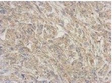 Immunohistochemistry (Formalin/PFA-fixed paraffin-embedded sections) - Anti-RNASE11 antibody (ab151436)