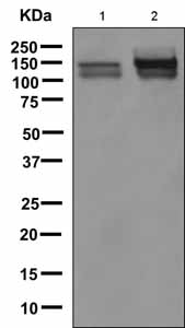 Western blot - Anti-NCAM1 antibody [EPR3367(2)] (ab151711)