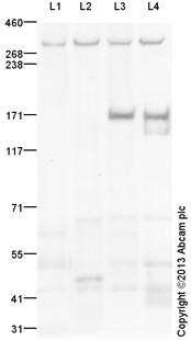 Western blot - Anti-ABCA12 antibody (ab154037)