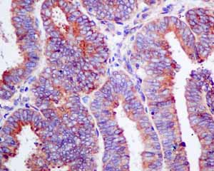 Immunohistochemistry (Formalin/PFA-fixed paraffin-embedded sections) - Anti-ERp57 antibody [EPR10679(B)] (ab154197)