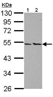 Western blot - Anti-PIP4K2 alpha antibody (ab154595)