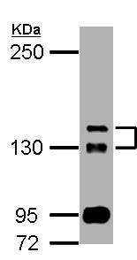 Western blot - Anti-TAOK2 antibody (ab155595)