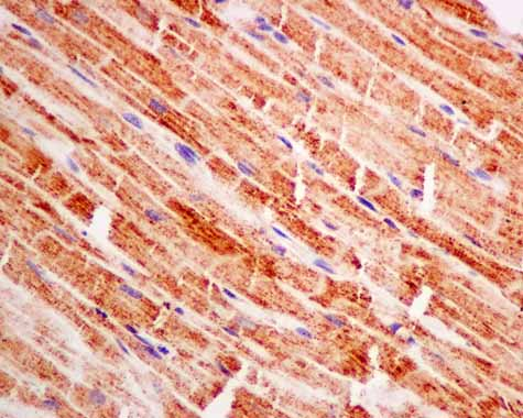 Immunohistochemistry (Formalin/PFA-fixed paraffin-embedded sections) - Anti-Pyruvate Dehydrogenase E1 beta subunit  antibody [EPR11096(B)] (ab155953)