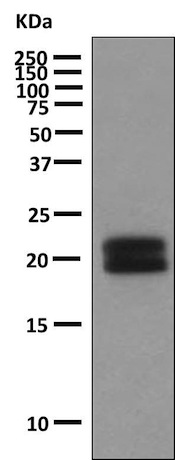 Western blot - Anti-Growth Hormone antibody [EPR9524-21] (ab155975)