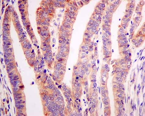 Immunohistochemistry (Formalin/PFA-fixed paraffin-embedded sections) - Anti-ARL 1 antibody [EPR10595] (ab155982)