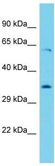 Western blot - Anti-YTHDF1 antibody (ab157542)