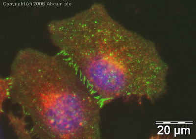 Immunocytochemistry/ Immunofluorescence - Anti-beta Catenin antibody (ab16051)