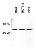 Western blot - Anti-Chk1 antibody (ab16130)