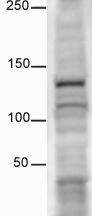 Western blot - Anti-CD133 antibody - Stem Cell Marker (ab16518)