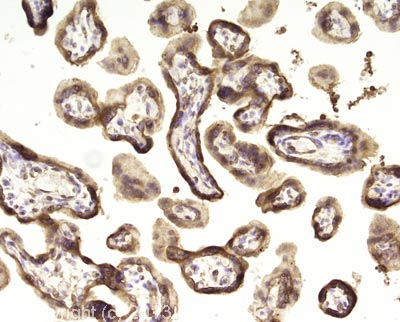 Immunohistochemistry (Formalin/PFA-fixed paraffin-embedded sections) - Anti-EGFR antibody [SP9] (ab16671)