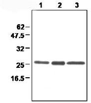 Western blot - Peroxiredoxin 3 antibody [4G10] (ab16753)