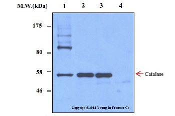 Immunoprecipitation - Anti-Catalase antibody [2A1] (ab16772)