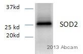 Western blot - Anti-SOD2/MnSOD antibody [2A1] (ab16956)