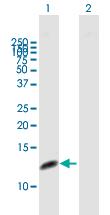 Western blot - Anti-RPA14 antibody (ab167593)