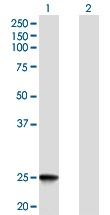 Western blot - Anti-IFNK antibody (ab168119)
