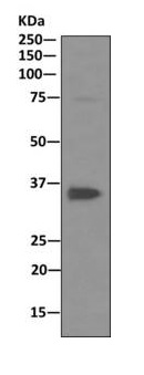 Western blot - Anti-PP2A alpha + beta antibody [EPR11787(B)] (ab168350)