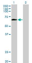 Western blot - Anti-Occludin antibody (ab168986)