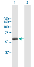 Western blot - Anti-TRIM45 antibody (ab169036)