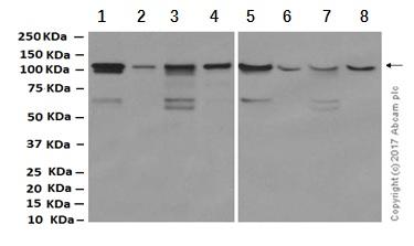 Western blot - Anti-PDE3A antibody [EPR11601] (ab169534)