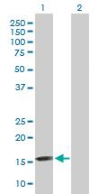 Western blot - Anti-FGF1 alpha antibody (ab169748)