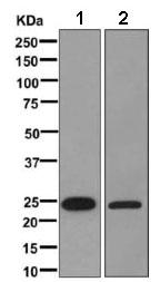 Western blot - Anti-AKAP associated Sperm Protein [EPR11265] antibody (ab169765)