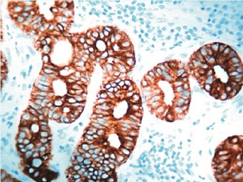 Immunohistochemistry (Formalin/PFA-fixed paraffin-embedded sections) - Anti-Cytokeratin 7 antibody [OV-TL12/30], prediluted (ab17069)