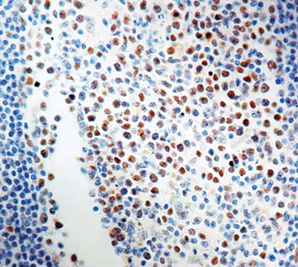 Immunohistochemistry (Formalin/PFA-fixed paraffin-embedded sections) - Anti-Rb antibody [1F8], prediluted (ab17119)