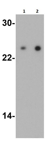 Western blot - Anti-TIRAP antibody (ab17218)