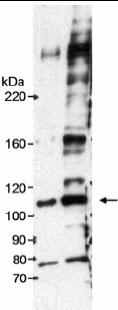 Western blot - Anti-DKFZP434B168 antibody (ab17256)