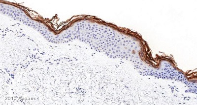 Immunohistochemistry (Formalin/PFA-fixed paraffin-embedded sections) - Filaggrin antibody [SPM181] (ab17808)