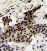 Immunohistochemistry (Formalin/PFA-fixed paraffin-embedded sections) - Anti-UBXN2A antibody (ab170264)
