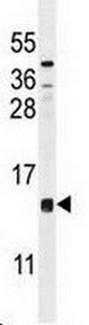 Western blot - Anti-CCDC126 antibody (ab170280)