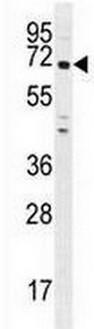 Western blot - Anti-PNLDC1 antibody - Carboxyterminal end (ab170282)